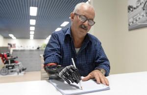 Una protesi bionica gli restituisce la mano persa in un incidente: la storia di un artigiano di Mondovì