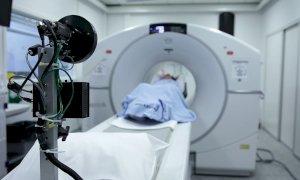 'Non abbiate paura di venire in ospedale: nel tumore al polmone la prevenzione è fondamentale'