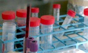 Coronavirus, negli ultimi dieci giorni un solo decesso in provincia di Cuneo