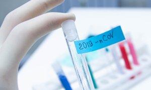 Coronavirus, in Piemonte 37 nuovi casi: solo 3 in provincia di Cuneo