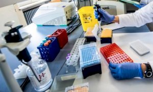 Coronavirus, la Regione cerca nuovi laboratori per processare più tamponi