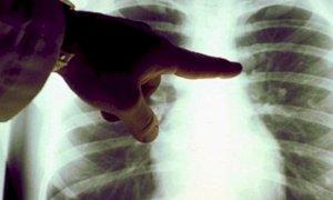 Nuova proroga per il Progetto Pilota sul tumore al polmone