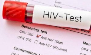 La Regione diffonde i dati sull'Aids: nel 2019 casi in diminuzione in Piemonte