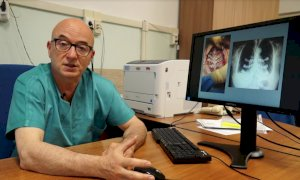 Impiantata per la prima volta all'ospedale di Cuneo una protesi allo sterno su misura da immagini Tac